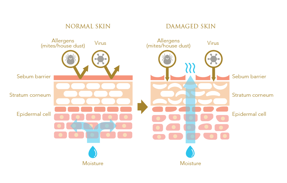 Infographic showing damaged skin barrier