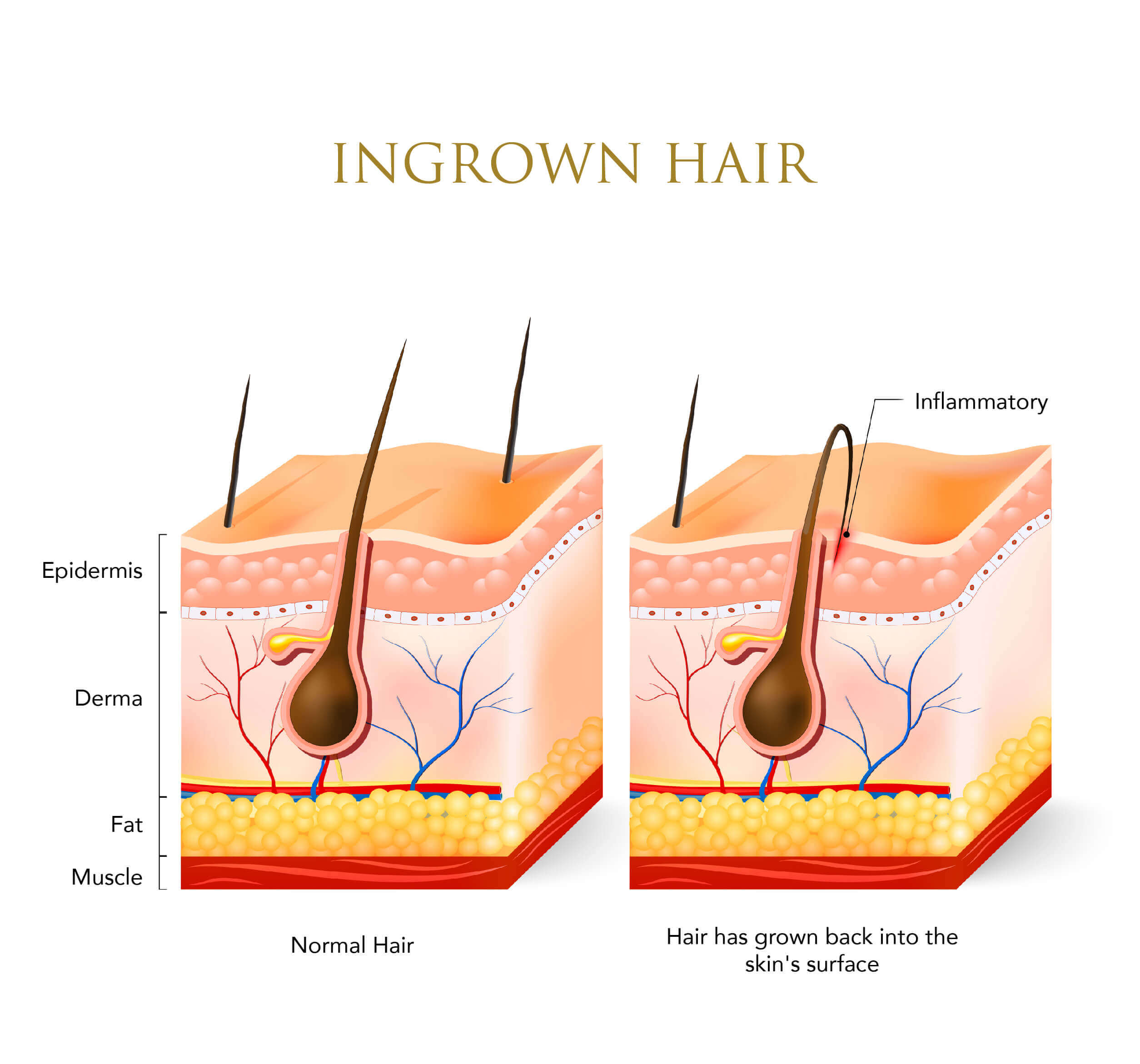 Infographic about ingrown hairs