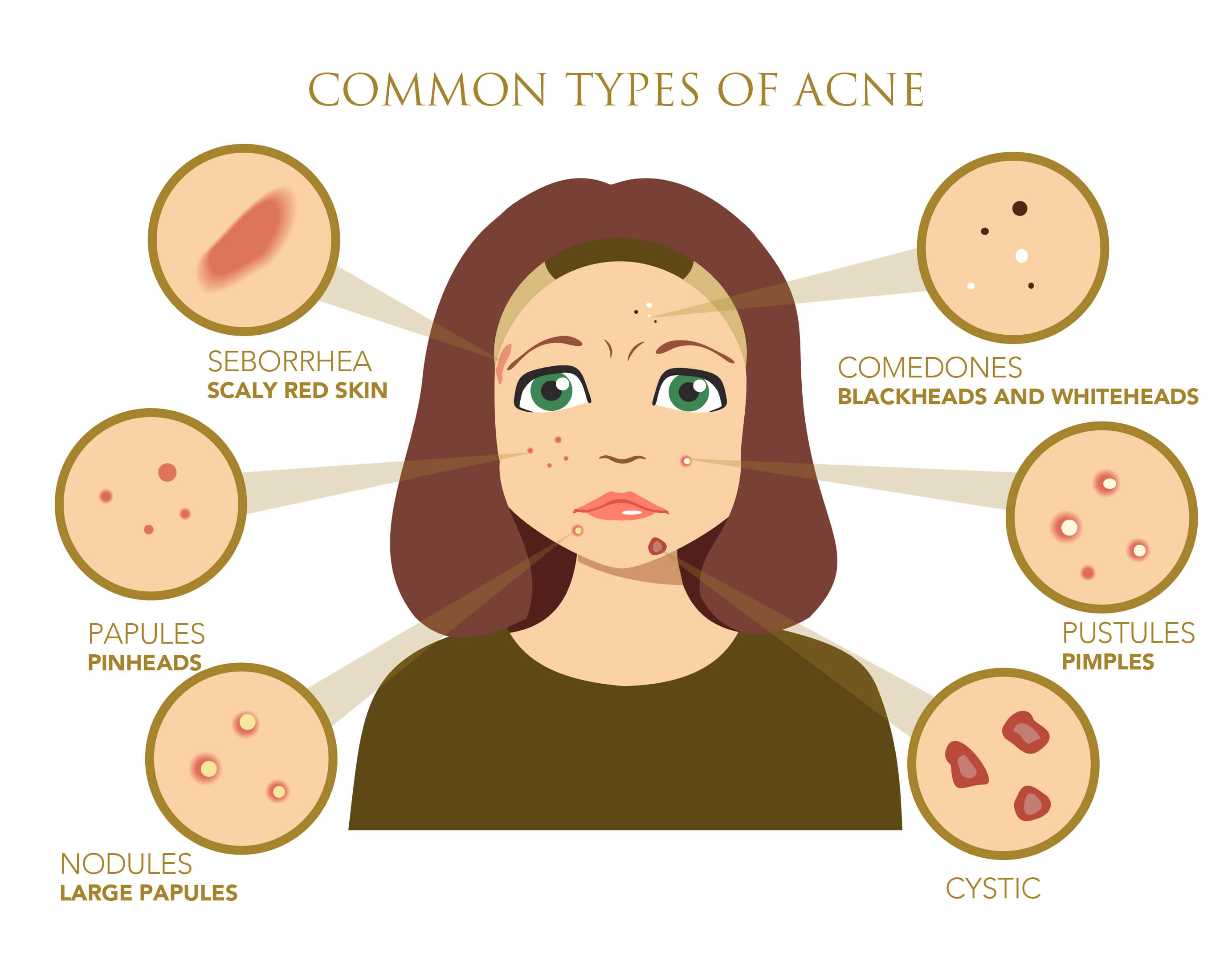 Infographic showing the different types of acne