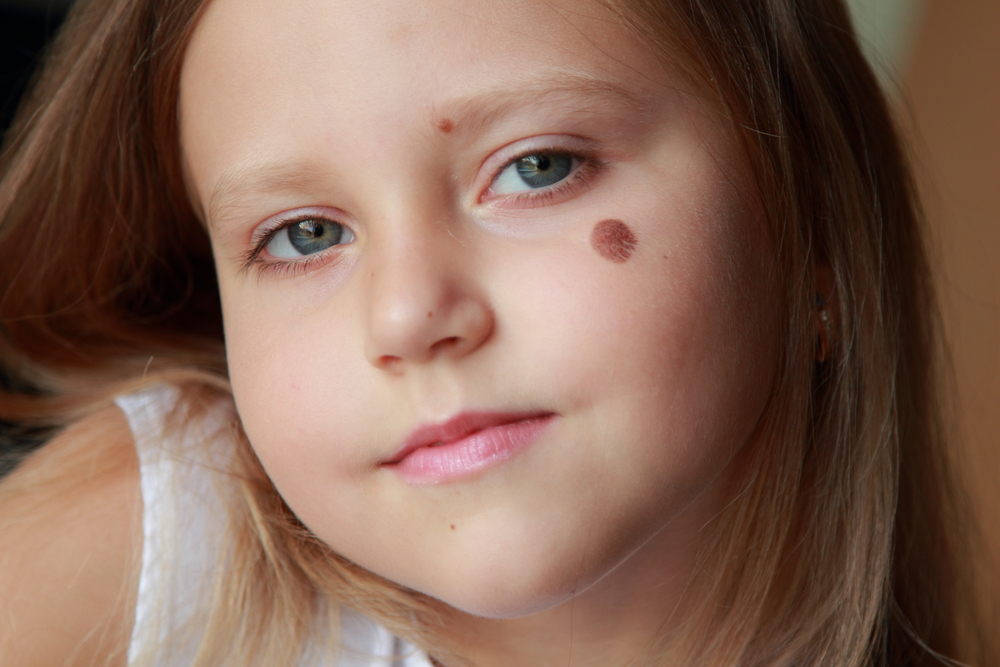 Vascular Birthmark on the cheek of a cute child.