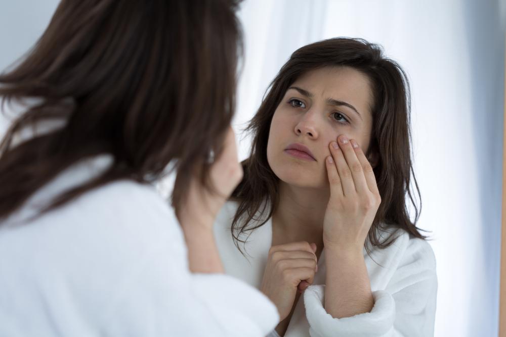 woman with eye circles